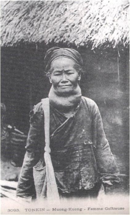 tonkin_Muong-Cuong_femme_goitreuse.jpg (86283 octets)